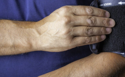 Person with a blood pressure cuff on their arm